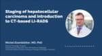Staging of hepatocellular carcinoma and introduction to CT-based LI-RADS (Oncologic CT imaging Series – Ep. 4)